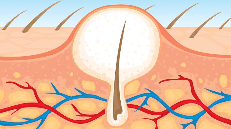 8 Tips to Prevent Ingrown Hair on Women